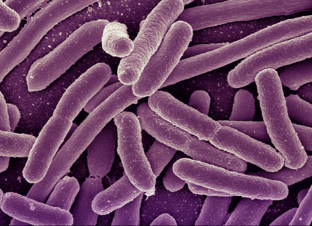 purple bacteria